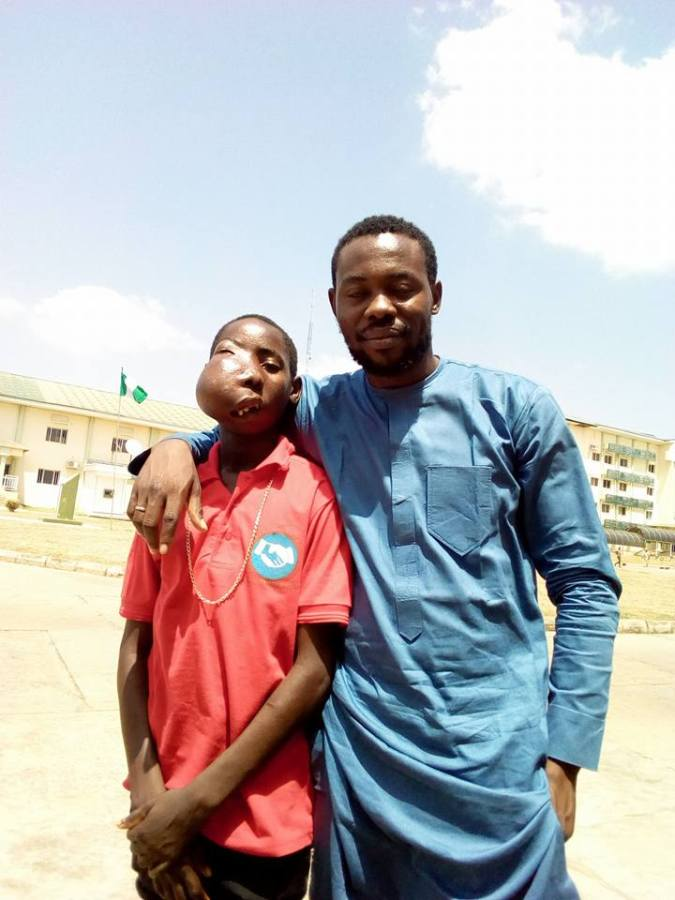 MORGAN OKWOCHE DONATES TO AMBLOBLASTOMA PATIENT, UGBEIKWU'S OPERATION